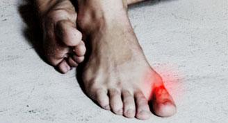 acido urico en los pies de ninos acido urico alimentos que lo causan jugos para combatir el acido urico